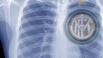 """""""Azi mi-am facut o radiografie!"""" Poza pusa de Walter Zenga pe Twitter face senzatie in presa italiana:"""