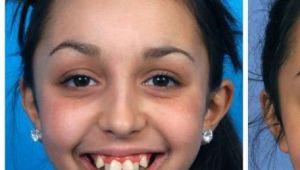 Dupa ce si-a operat maxilarul, aceasta tanara a devenit de nerecunoscut. Transformarea este cu adevarat uluitoare