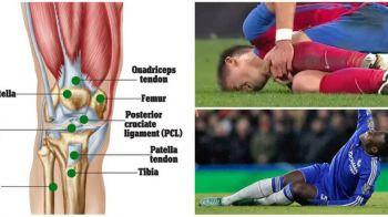 Ruptura de ligamente, cea mai temuta accidentare din fotbal. Verdictul pentru Florin Tanase a mai fost primit si de Gardos, dar si de o lunga lista de jucatori din Premier League
